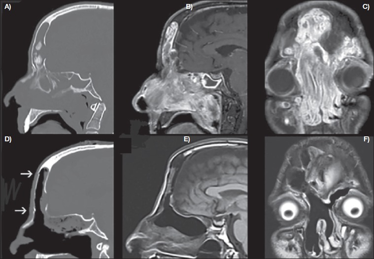 inverted papilloma frontal sinus mri