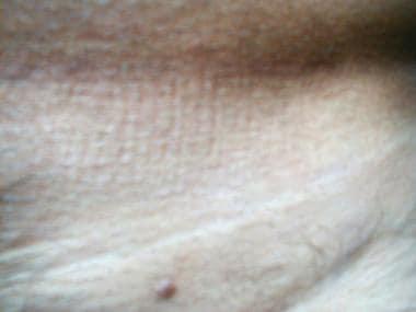 crijevni paraziti kod covjeka simptomi contoh platyhelminthes nemathelminthes dan annelida