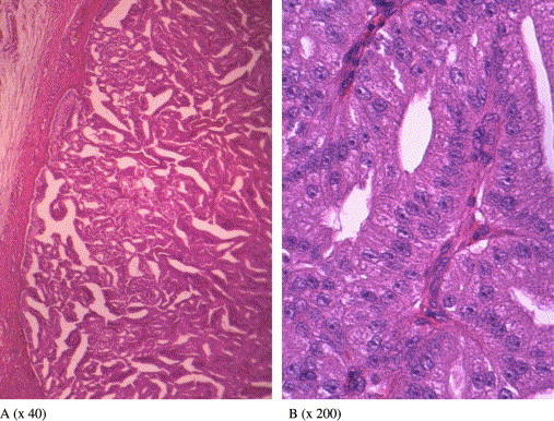 Inverted ductal papilloma salivary gland