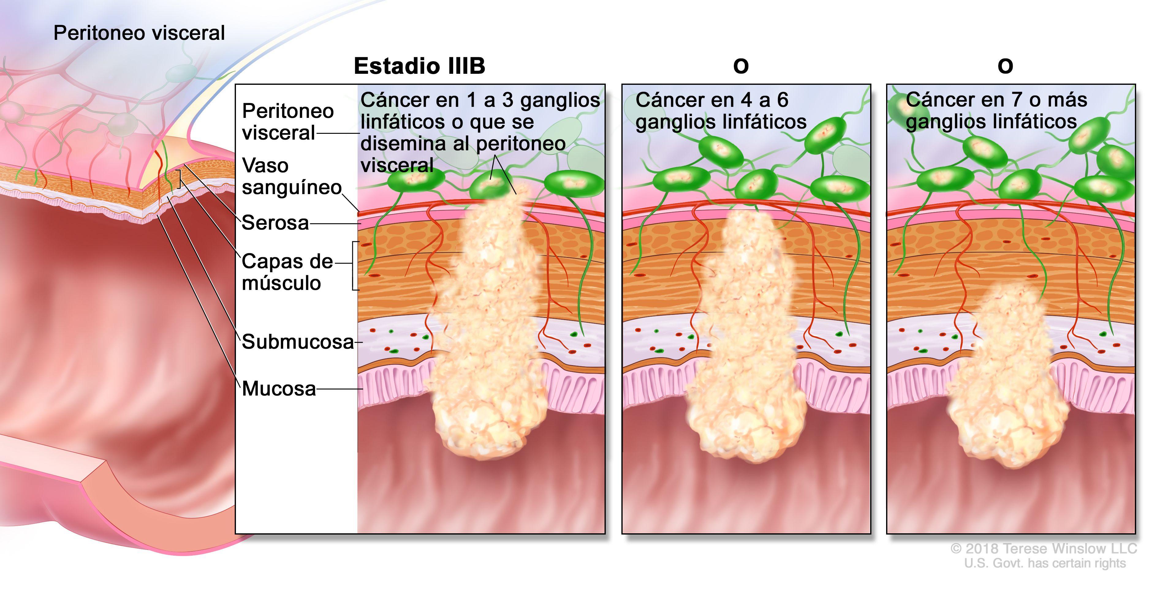 cancer de colon nivel 4 îngrijirea verucilor genitale