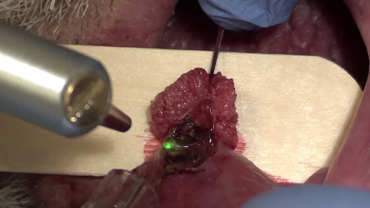 papilloma labbro inferiore
