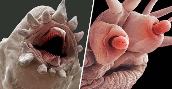 ce numesc viermii în corpul uman dieta de detoxifiere a colonului gratuit