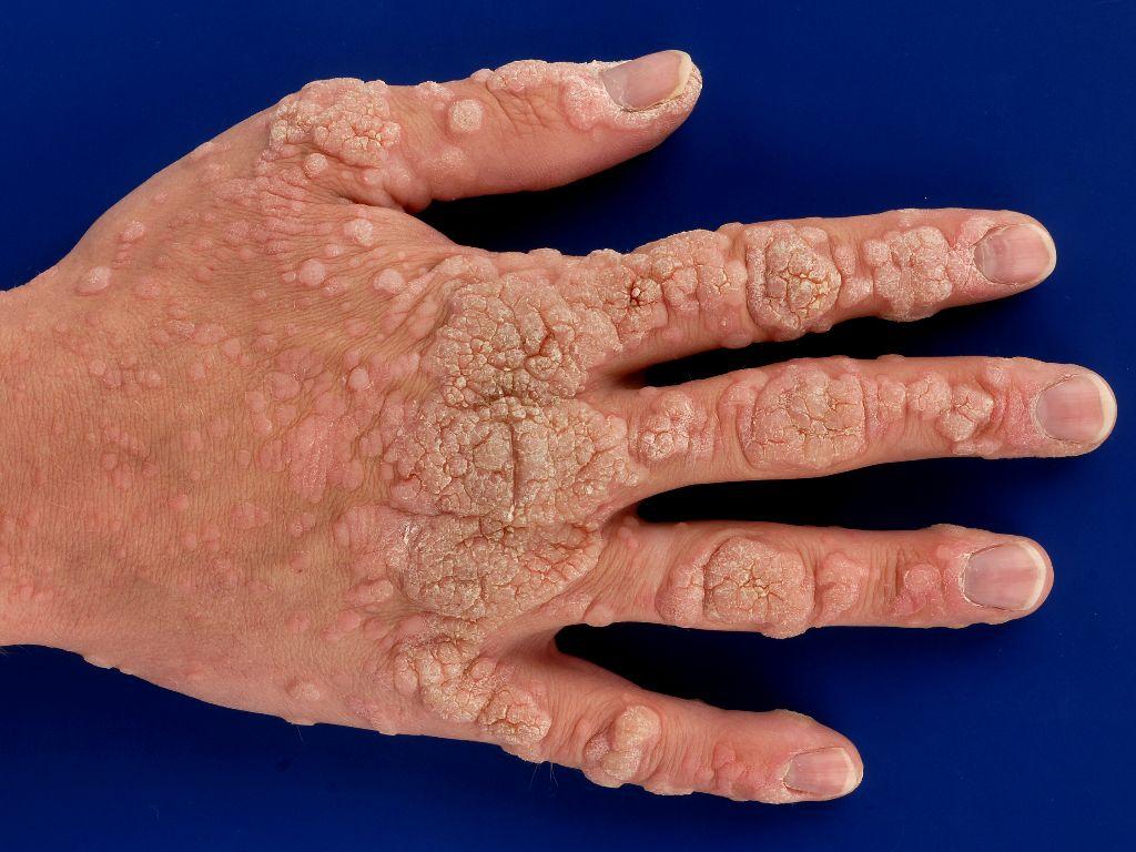 le papillomavirus definition