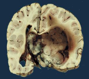 Choroid plexus papilloma la gi, Papilloma of the choroid plexus