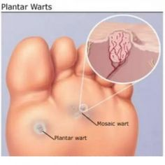 Graphic Designer, Plantar wart on foot bleeding Foot wart root
