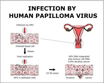 papilloma virus symptoms