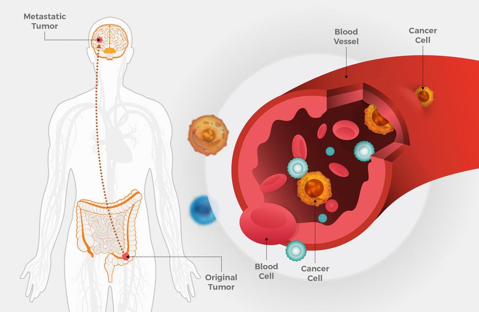 metastatic cancer of the colon viermi de tip viermi în tableta omului