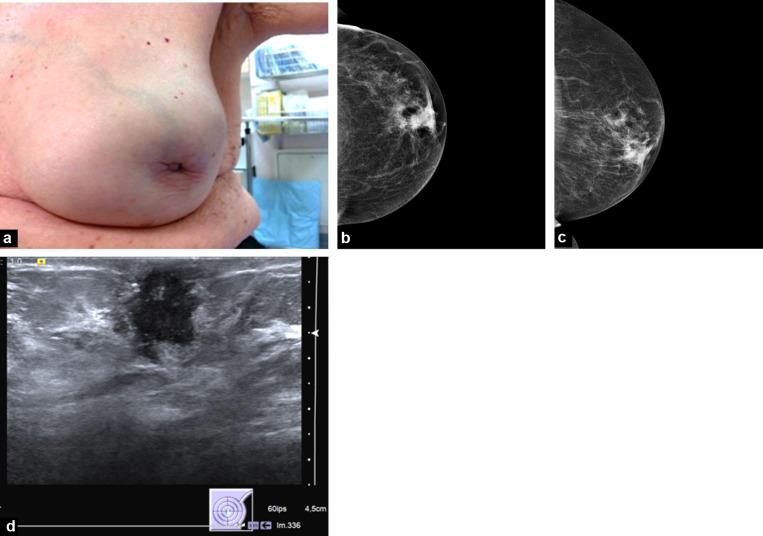 Remedii-homeopate, Intraductal papilloma inverted nipple - Intraductal papilloma inverted nipple