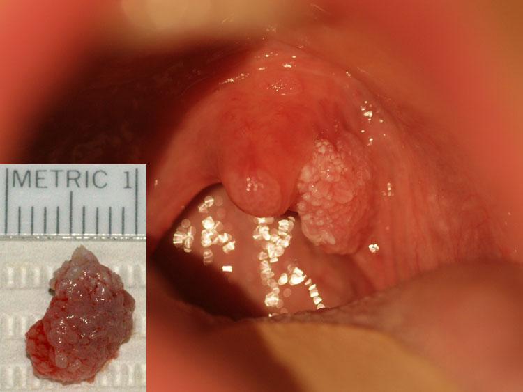 papilloma throat
