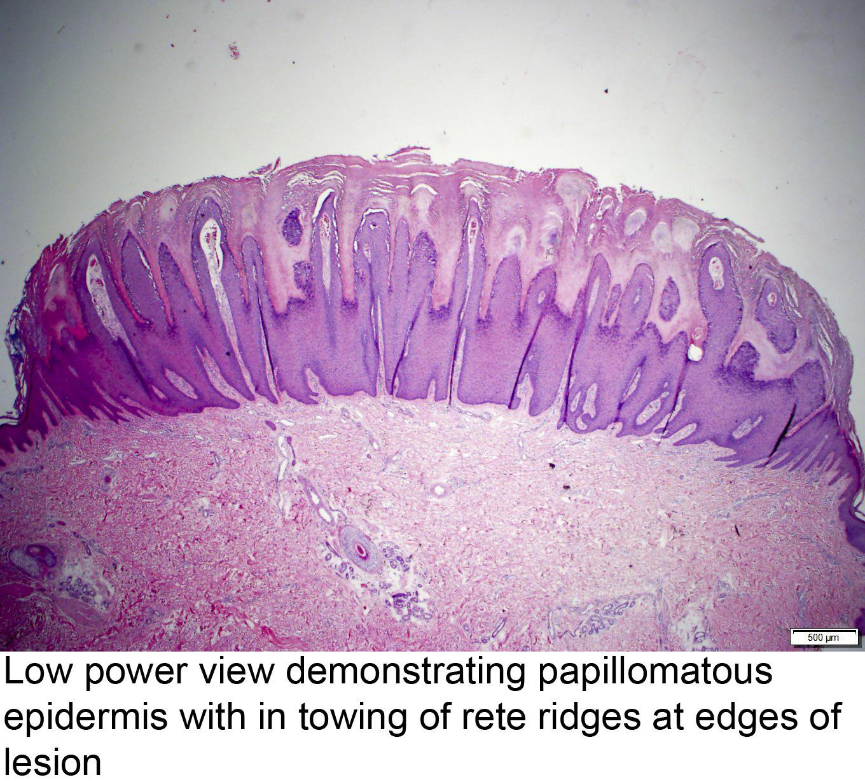 Kako leciti hpv infekcija, Kako se leci hpv virus kod zena
