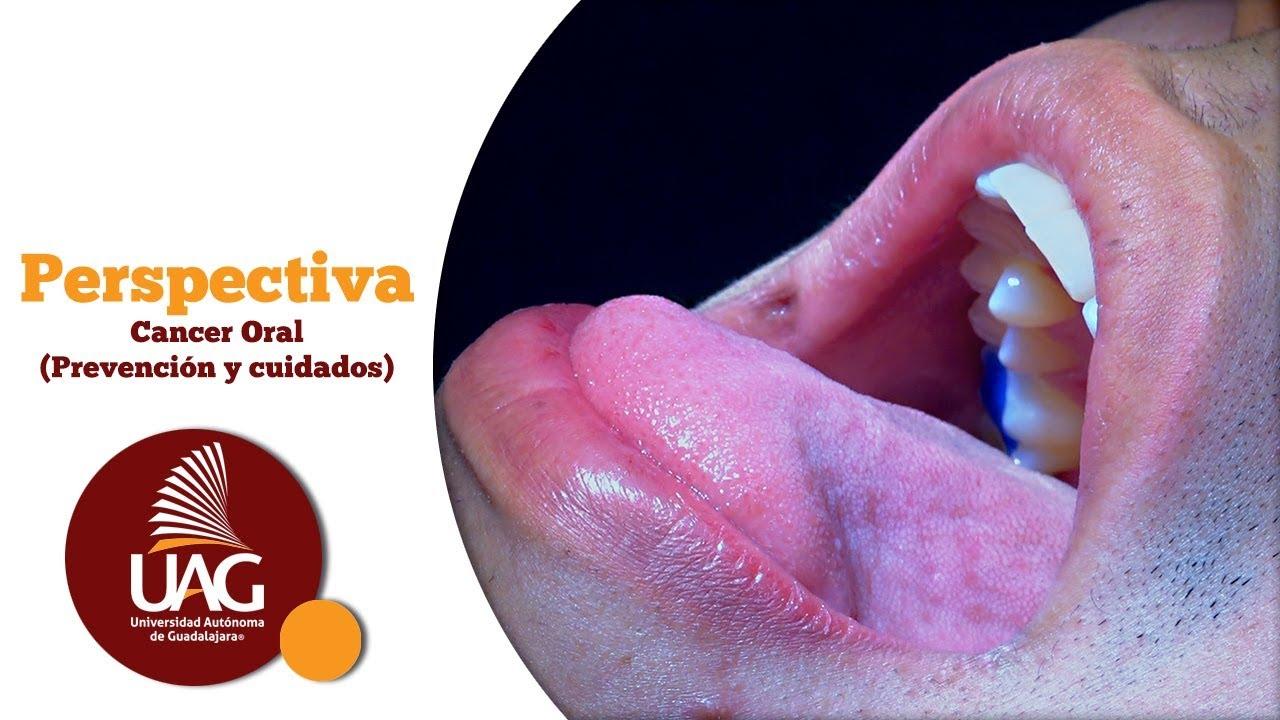 Retete recuperare intestinale microflora remedii populare