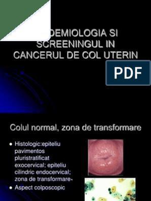 Eroziunea de col uterin: cauze, simptome şi măsuri de profilaxie — IMSP SCM
