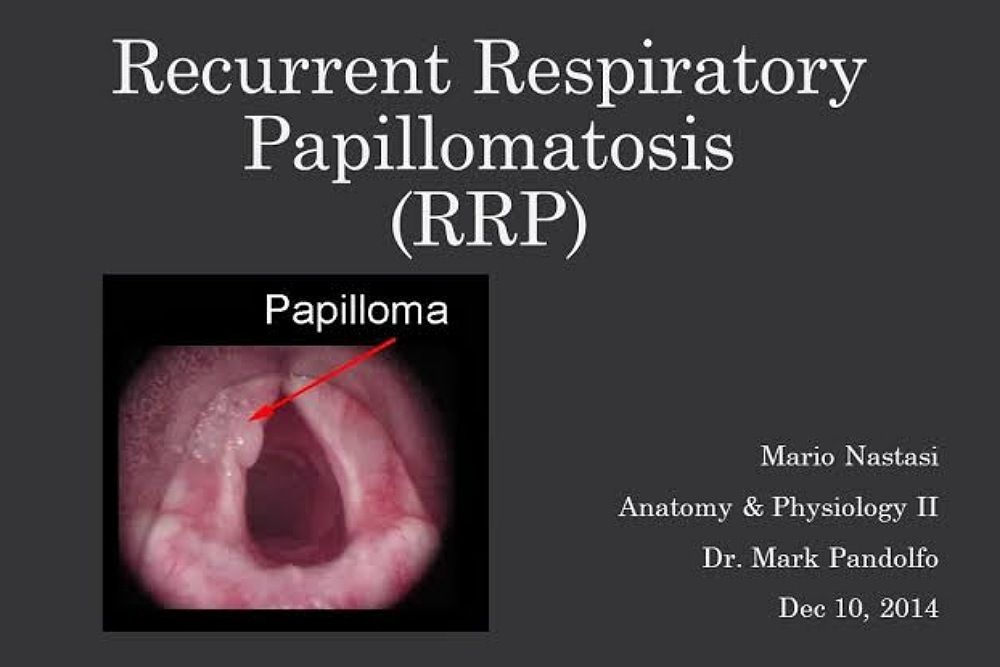laryngeal papillomatosis is caused by