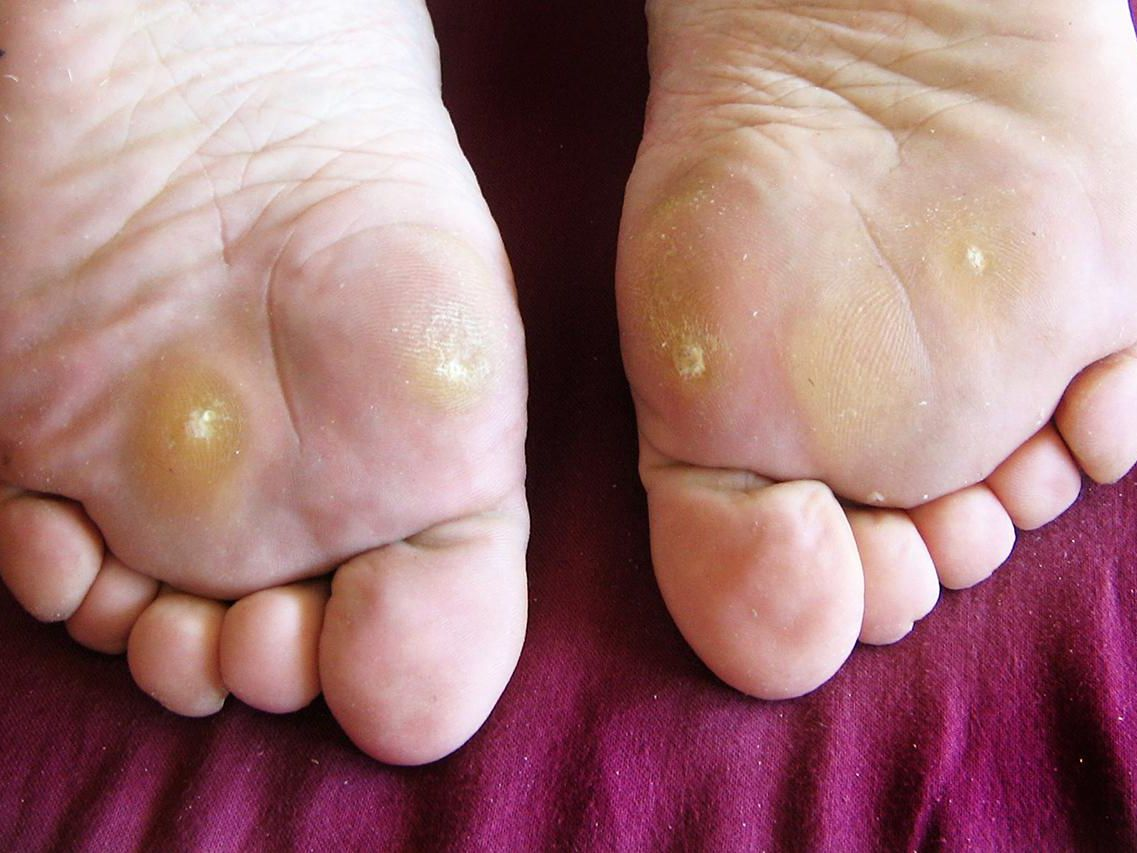 Wart virus on toe. Wart on my foot treatment