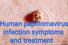 Warts treatment medication, Hirsutoid papilloma - Wart treatment in ayurveda