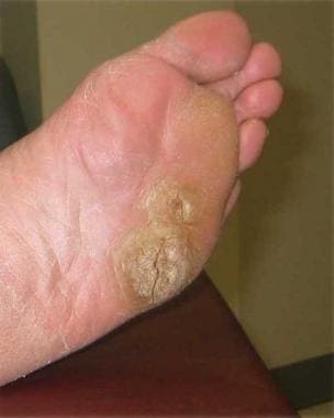 Foot wart root