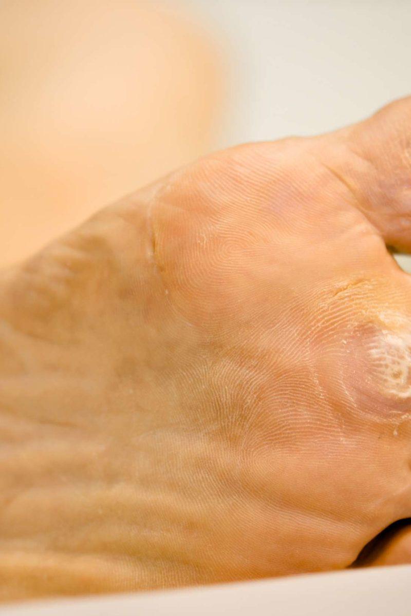 Wart on foot with black center - topvacanta.ro