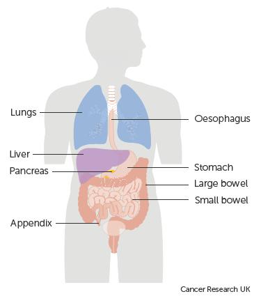Cancer neuroendocrine tumour