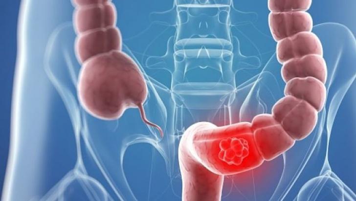 Din ce cauze apare cancerul de colon