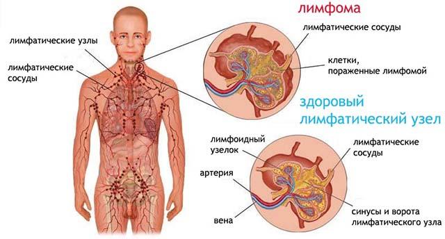 Autoinfection of enterobiasis. Tratamentul viermilor: simptome și medicamente