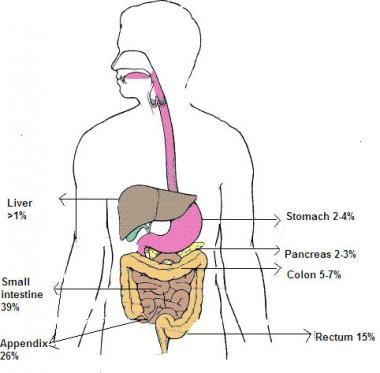 Neuroendocrine cancer growth. Neuroendocrine cancer a