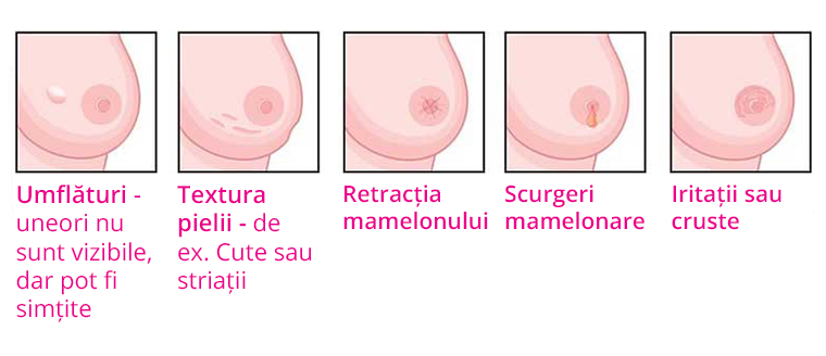 cancerul nu doare de la care poți obține veruci genitale