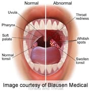 hpv mouth cancer symptoms