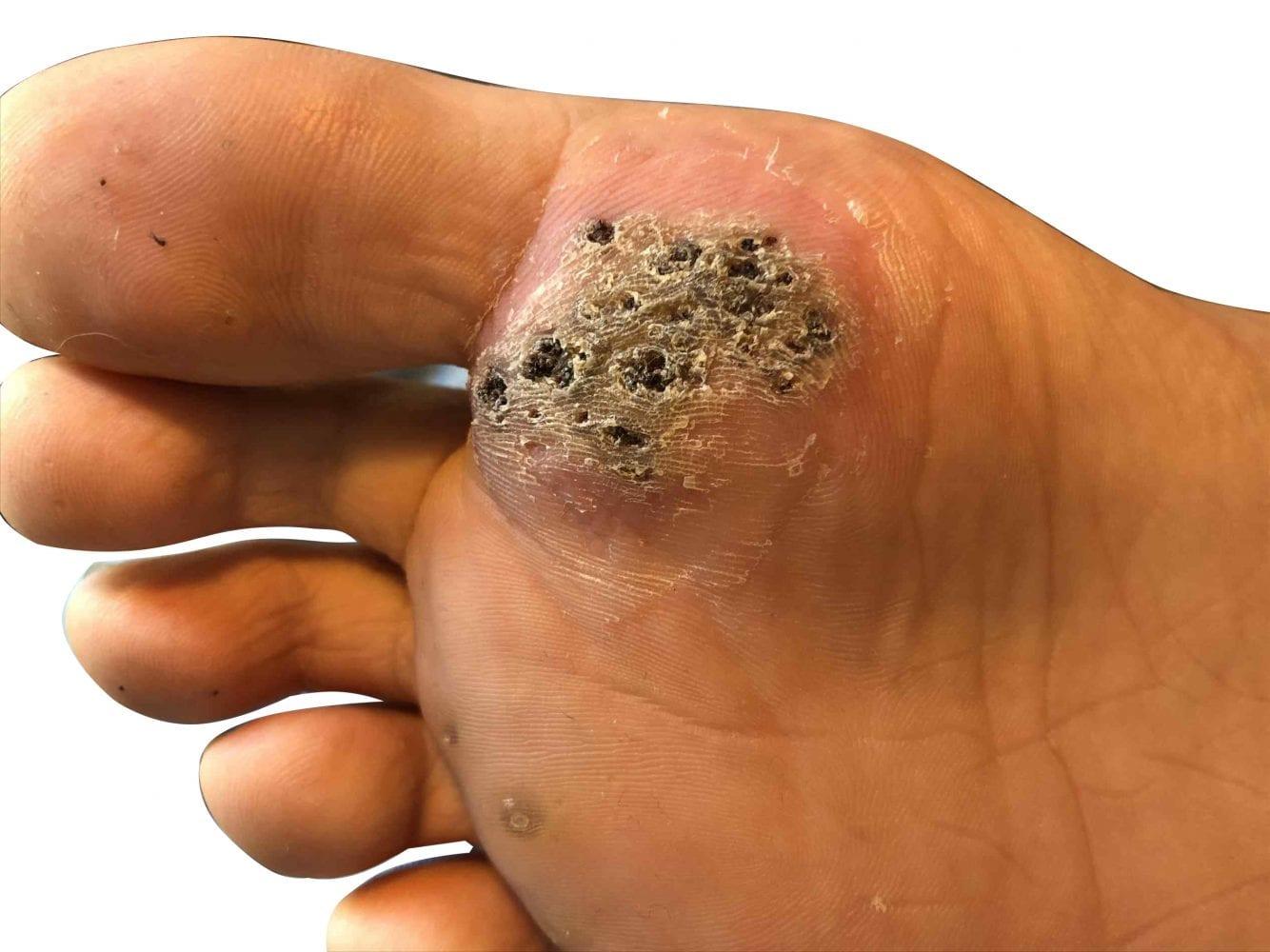 wart on foot heel