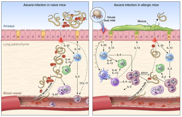 helminth lung infection