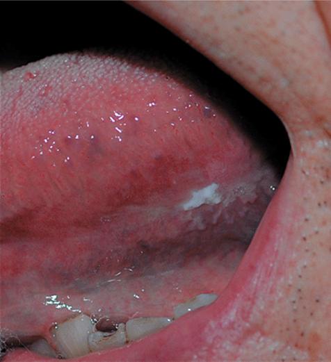 squamous papilloma of esophagus icd 10 condiloame la femei cum arată