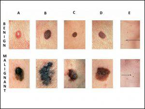 cancerul de piele se vindeca wart treatment chemist warehouse