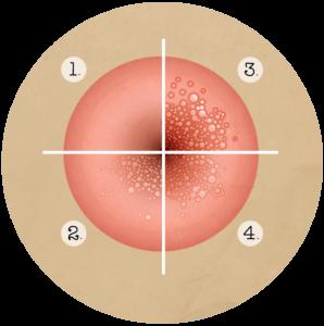 Papillomavirus symptome femme, Le papillomavirus symptomes