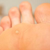 foot wart mean