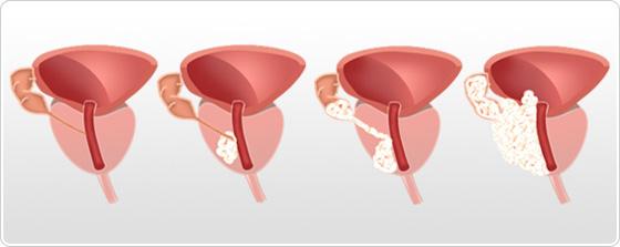 cancer de prostata | despre cancer