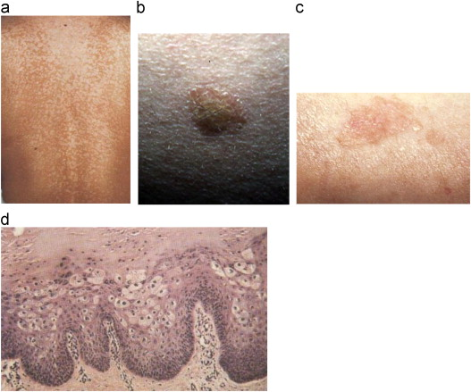 Hpv skin discoloration. Warts pictures. CO2 Laser treatment for benign skin lesions