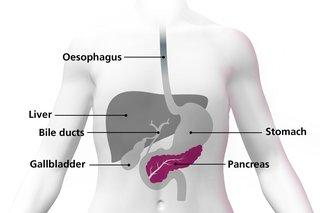 Paraziții intestinali - Remedii naturale contra paraziţilor - Paraziți la om simptome uk