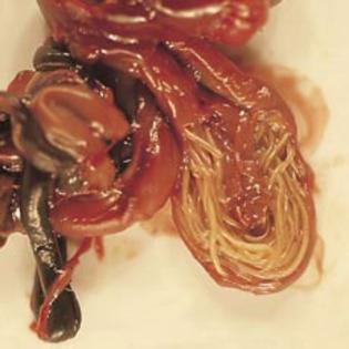 paraziti viermi chinezi
