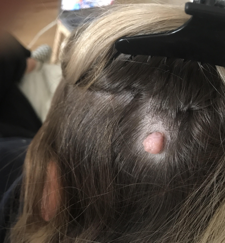 Hpv wart scalp - Wart virus on scalp Wart pe cap în păr