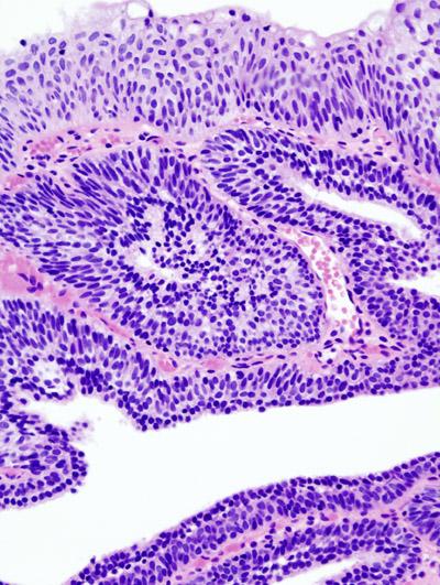 Papilom vezica urinara Pagina 2
