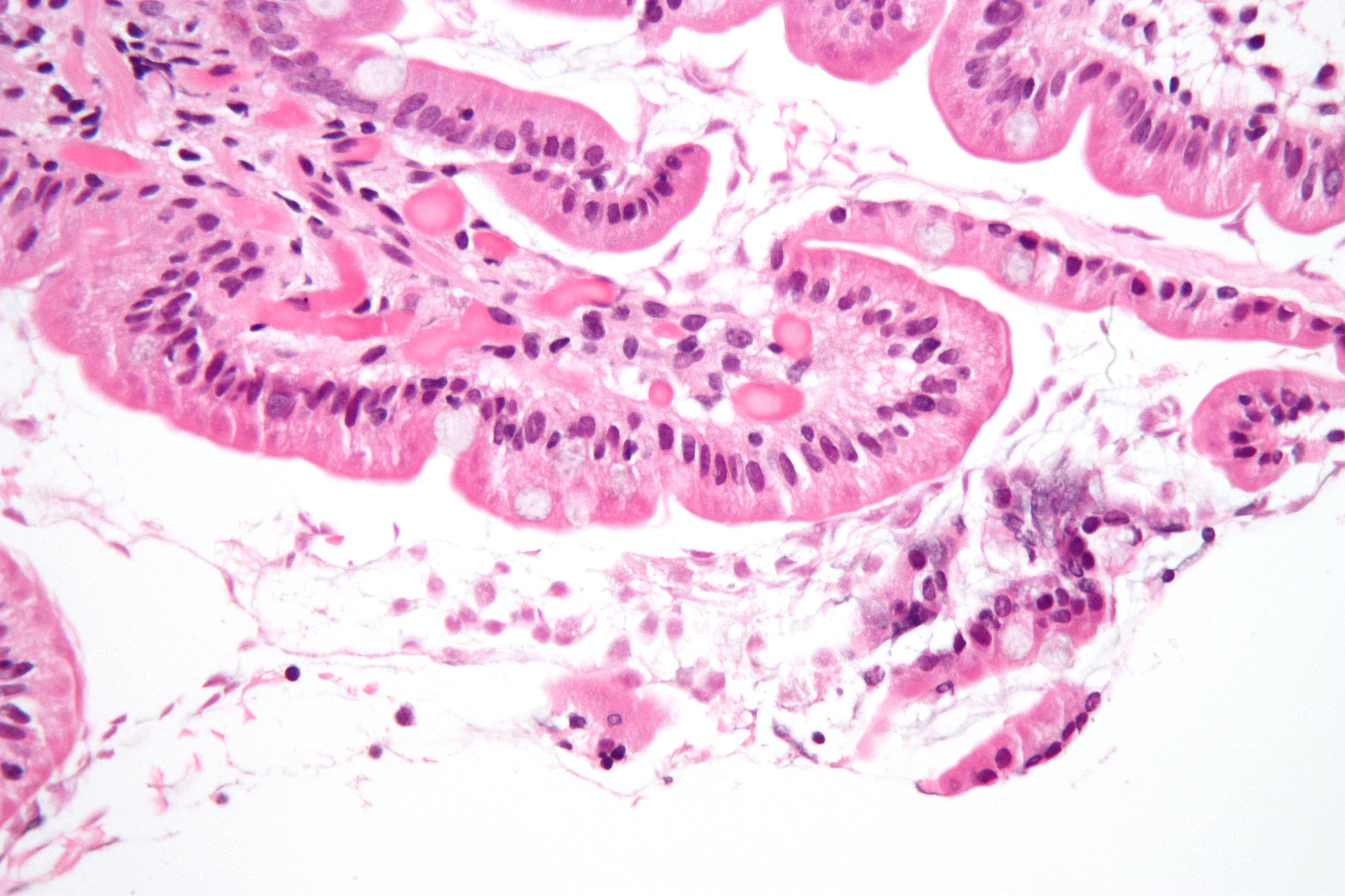 giardia duodenum