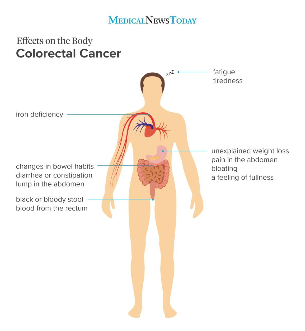 Varsta influenteaza evolutia clinica si moleculara a cancerului colorectal?