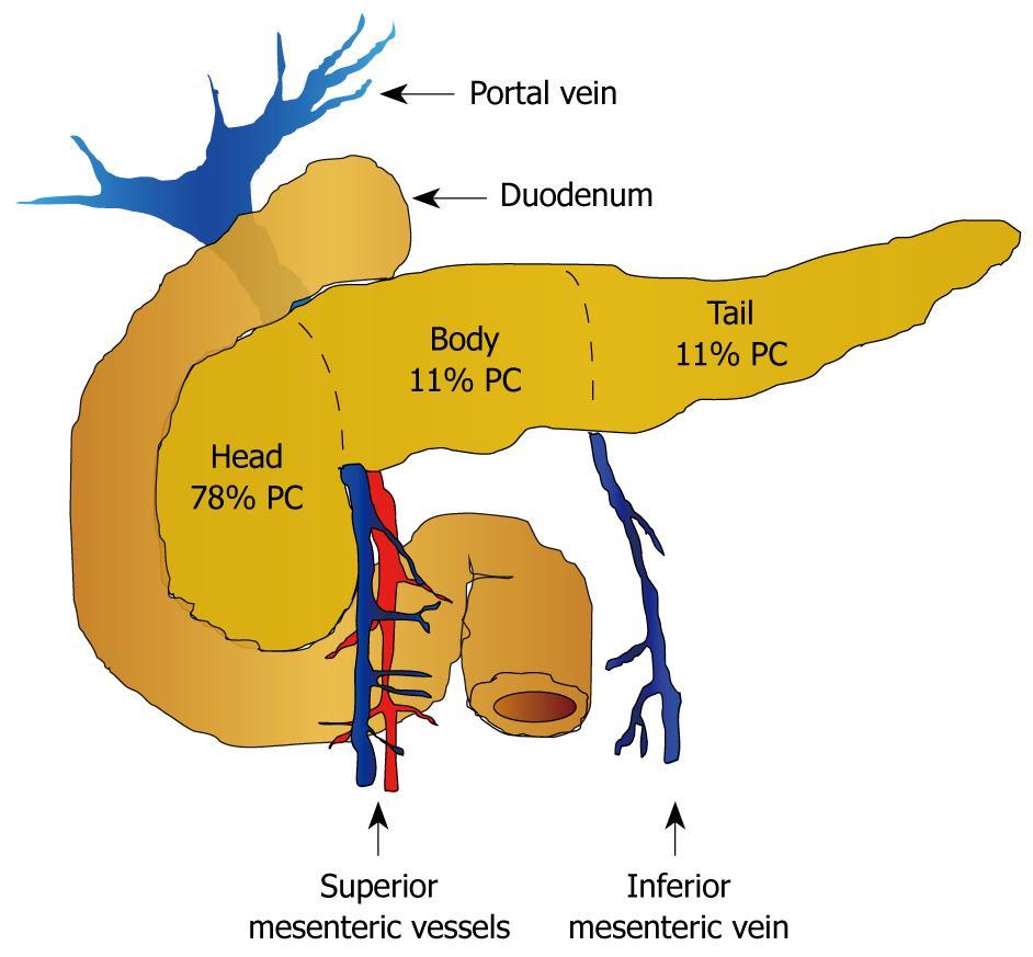 cancer pancreatic tail