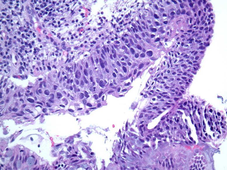 Hpv of esophagus, Hpv and esophagus