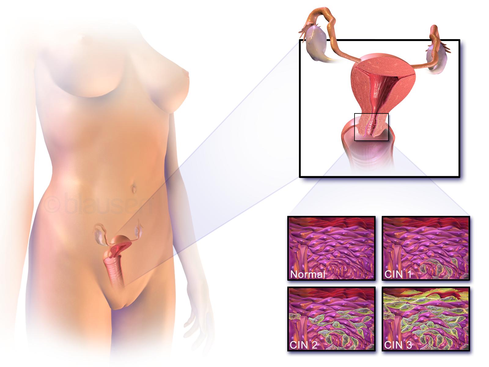 cancerul de ia sistemul nervos al fergusilor