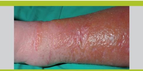 Cancer sarcoma jambe,