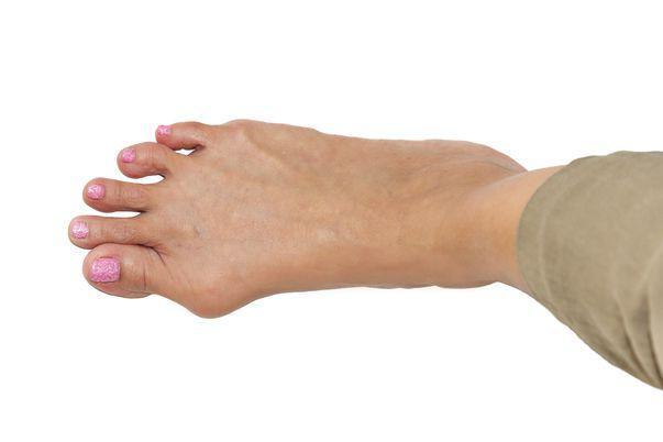 umflături între tratamentul degetelor de la picioare remediu negilor