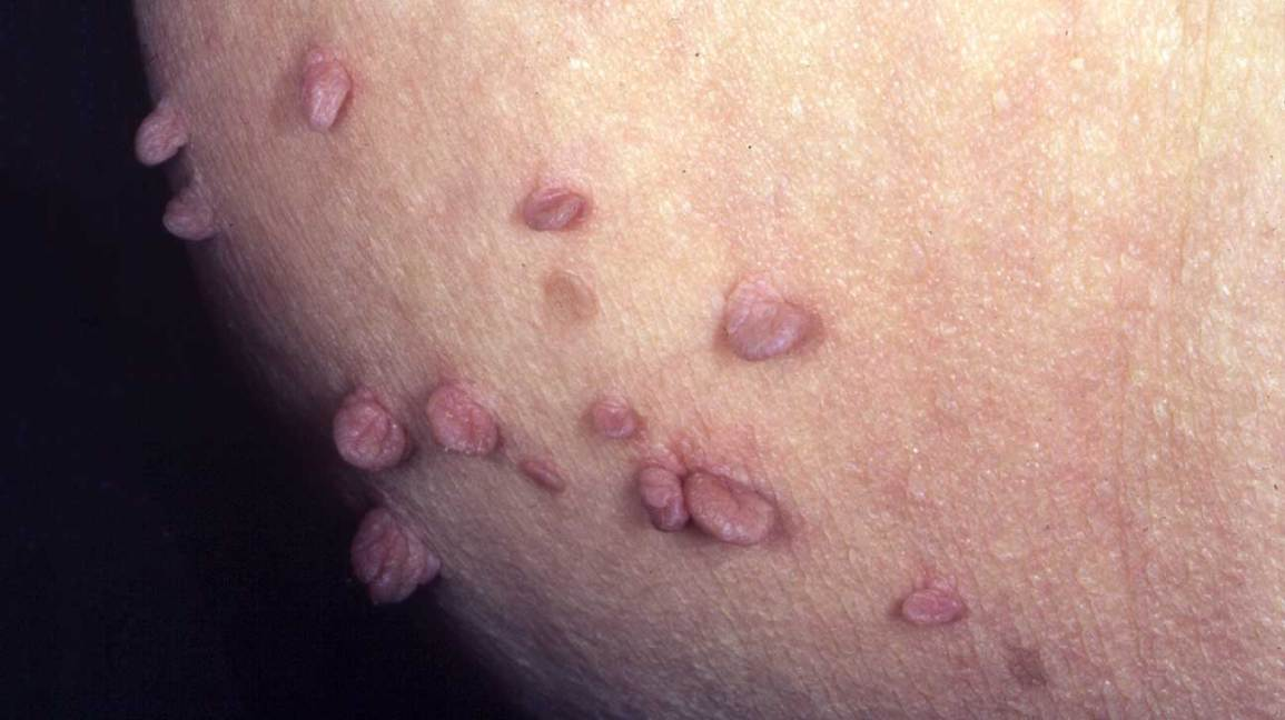 hpv on your skin