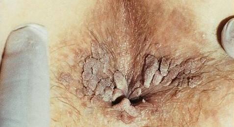 Veruci Genitale si Condiloame Acuminate