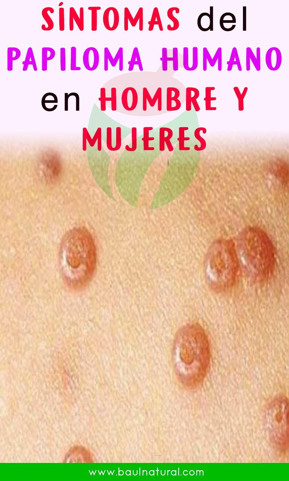 HPV (Papilomavirusul uman) | topvacanta.ro