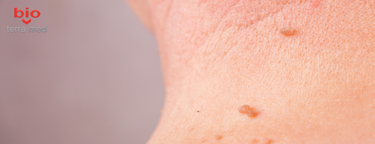 can hpv cause head and neck cancer